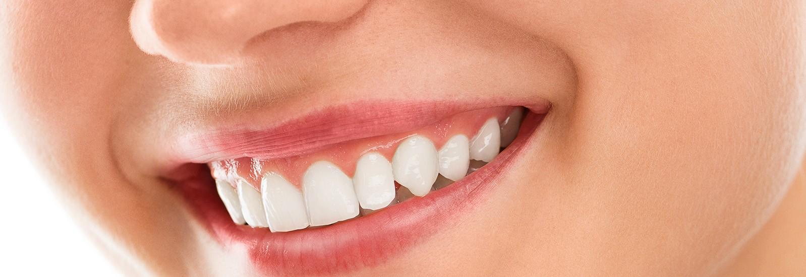 Gums Smile